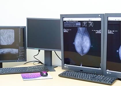 女性認定技師によるマンモグラフィ撮影・ABUSの撮影